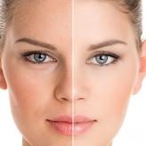 Regularny peeling dla skóry